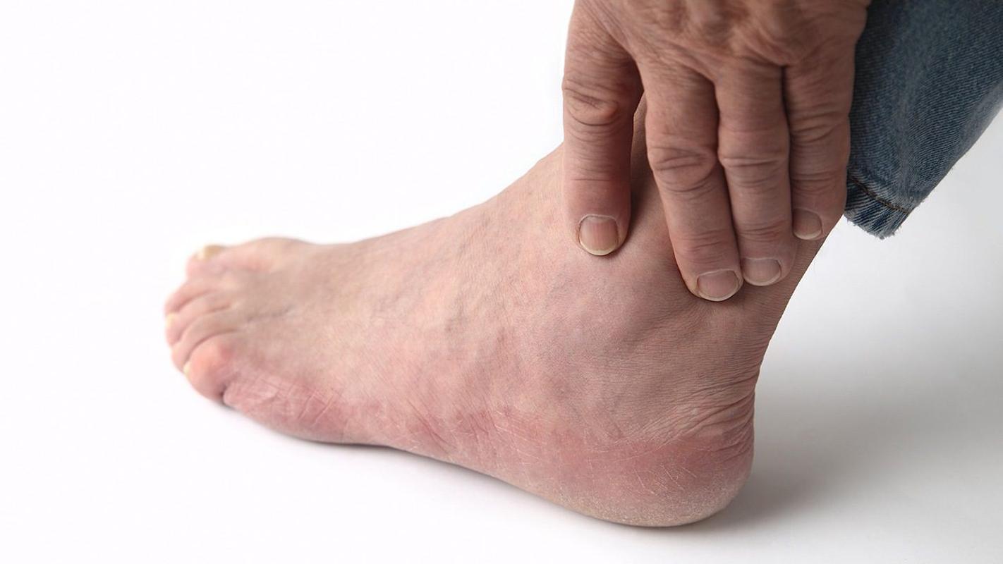 Для устранения застоя жидкости в ногах применяют различные мочегонные препараты, средства, улучшающие микроциркуляцию в тканях.