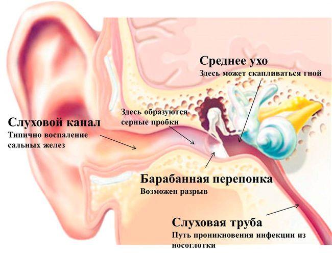 Воспаление уха грозит тяжелыми последствиями для человека