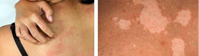 Оргубевший лишай характеризуется желто-розовыми пятнами на теле, зудом и шелушением, на местах расположения лишая, кожа не загорает