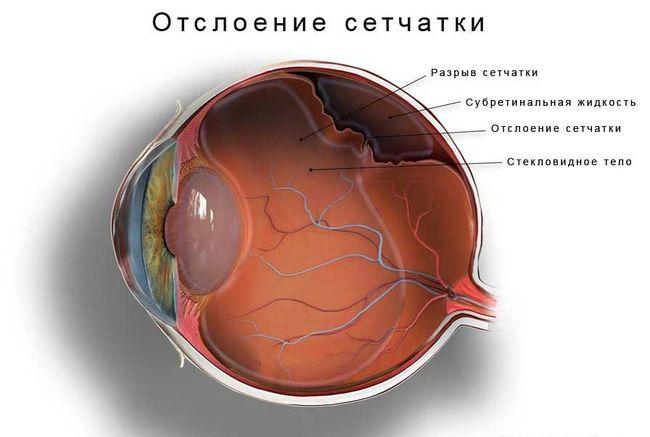 Отслоение сетчатки глаза происходит в большинстве случаев у людей пожилого возраста.