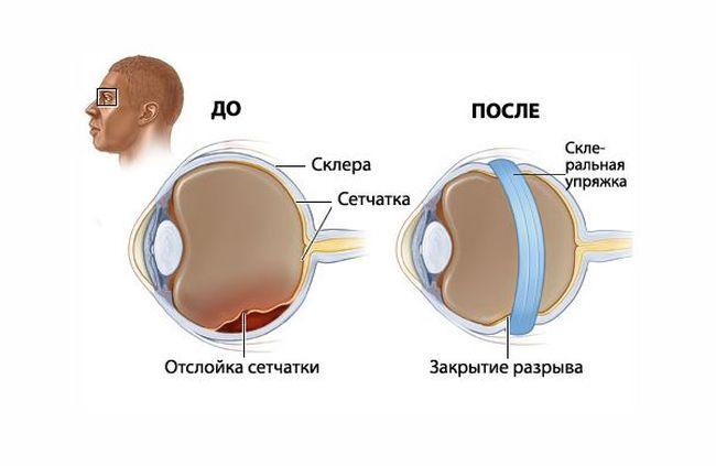 После лечения заболевания зрение будет восстановлено.
