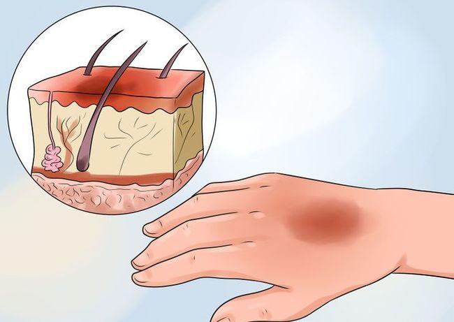 При помощи народных средств можно ускорить процесс восстановления поврежденной кожи от термического ожога