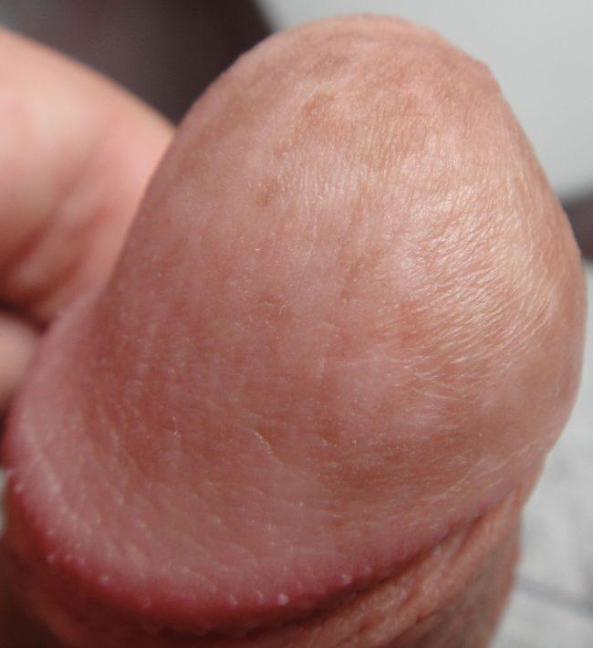 Папилломы на члене – заразное инфекционное заболевание, требующее обязательного лечения. Наросты могут формироваться на поверхности слизистой оболочки или на кожных покровах пениса.