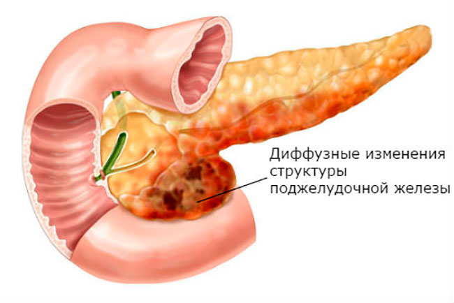 Диффузные изменения в паренхиме поджелудочной железы, обычно говорят о замещении железистой ткани рубцами или жировыми клетками
