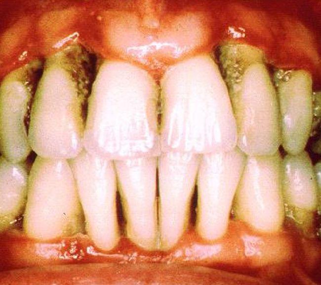 Зубы пораженные пародонтозом