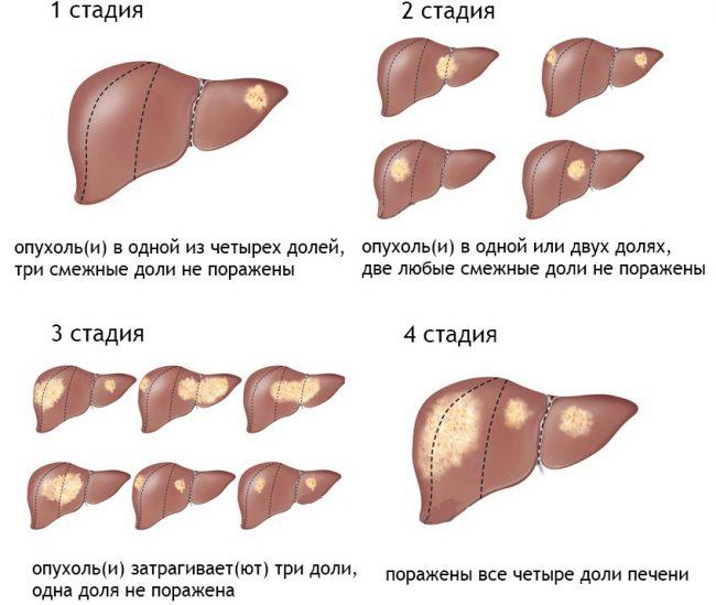 Рак печени – тяжелейшая онкологическая патология, которая может унести жизнь пациента за считанные месяцы.