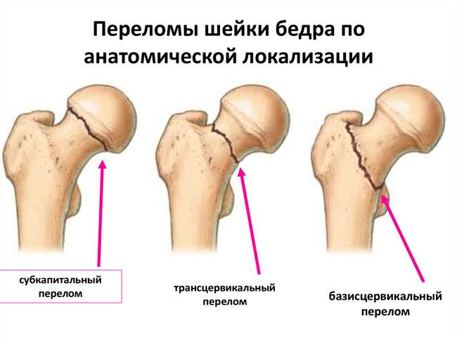 Перелом шейки бедра со смещением характеризуются острой болью и деформацией кости, такой перелом опасен кровоизлиянием в мягкие ткани бедра