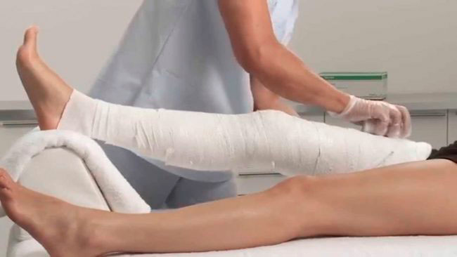 В зависимости от сложности перелома, лечение проводится операционным или консервативным путем, основа терапии - обеспечении поврежденному сустава покоя