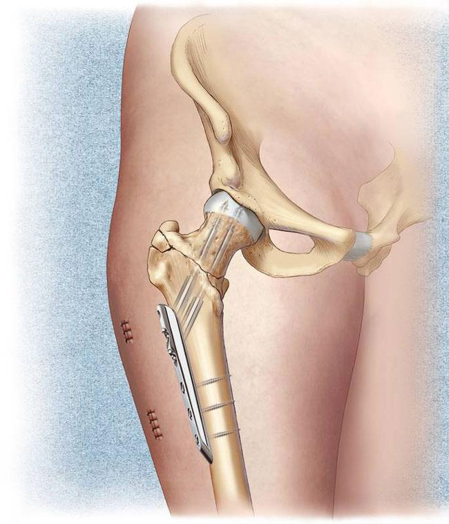 В большинстве случаев перелом шейки бедра у пожилых людей лечится с помощью хирургического вмешательства, во время которого фиксируются костные отломки и ускоряется процесс восстановления