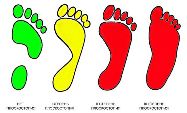 Для освобождения от призыва необходимо наличие продольного плоскостопия III степени (и более), либо поперечного III - IV степени с выраженным болевым синдромом, экзостозами, контрактурой пальцев и наличием артроза в суставах среднего отдела стопы