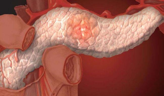 Острый панкреатит - это сильное воспаление тканей поджелудочной железы