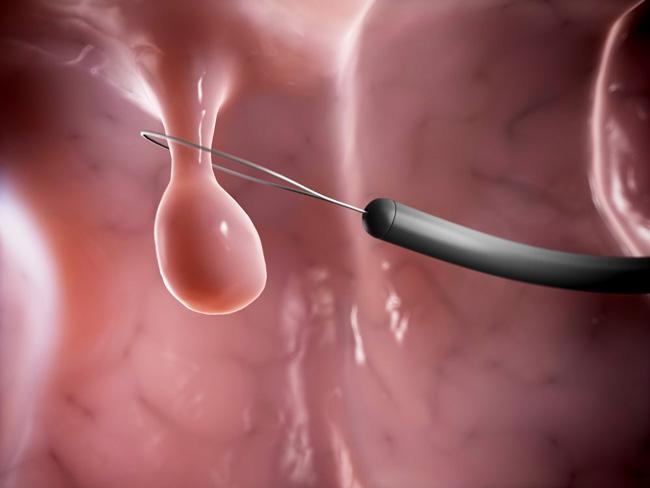 При удалении полипов в носу с использованием петли или крючка Ланге, удаляется видимая часть полипа, при этом в мягких тканях может остаться часть новообразования, что может привести к рецидиву