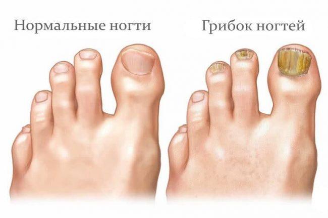 Одной из причин является грибок ногтей или ног. Пока грибок не вылечен, от очень сильного запаха ног не избавиться.