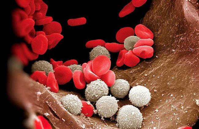 Повышение лейкоцитов в крови - тревожный сигнал организма