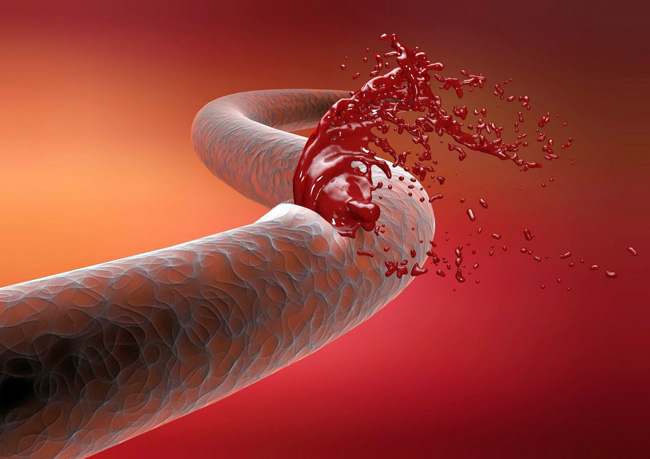 Основным клиническим признаком гемофилии является повышенная кровоточивость с самых первых дней жизни младенца