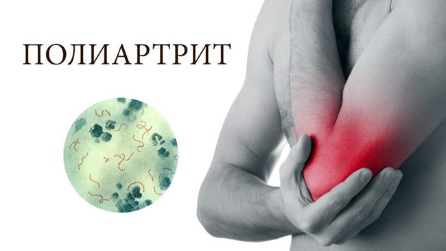 Полиартрит вызывает воспаление, затрагивая сразу целые группы суставов. Негативные симптомы могут начаться в тканях и в кровеносных сосудах. На теле появляется воспаление, которое сопровождается болью