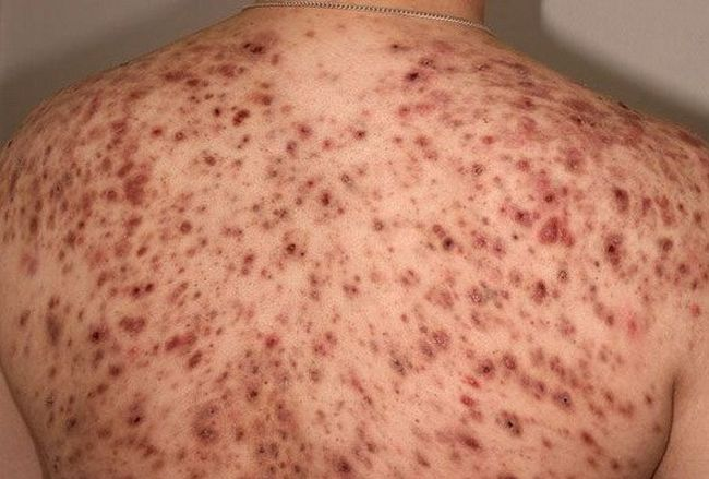 Для борьбы с прыщами на спине нужно обратиться к дерматологу или терапевту