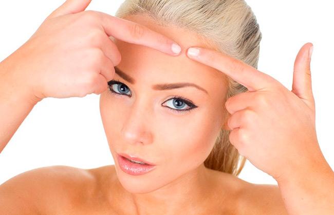 Даже после избавления от угрей, на коже зачастую остаются шрамы, ямки, рубцы, как последствия угревой сыпи на устранение которых может понадобиться длительное лечение