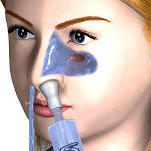 Промывание носа в домашних условиях солевым раствором поможет вам в лечении насморка, гриппа, а также при остром и хроническом тонзиллите