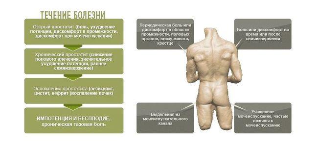 Простатит у мужчин бывает хронический и острый.