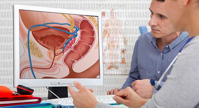При брахиотерапии препарат радиоактивного вещества вводится непосредственно в тело предстательной железы, поэтому возникновение любых побочные эффектов сводится к минимуму