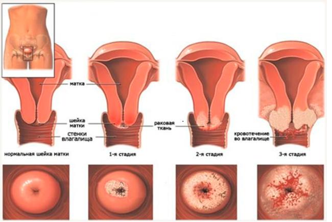 Рак шейки матки в инвазивной стадии, попадает в мембрану, затем проникает в параметрии. Со временем новообразование распространяется на стенки таза, затем переходит в прямую кишку или прорастает в мочевой пузырь