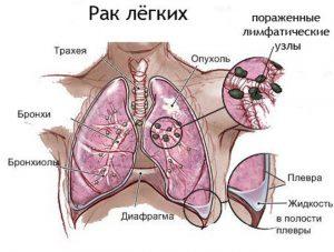 Как и любой другой вид рака, так и рак легких имеет несколько видов, которые отличаются разной степенью тяжести и скорости развития.