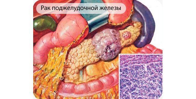 Рак поджелудочной железы занимает четвертое место в списке смертности от рака в США