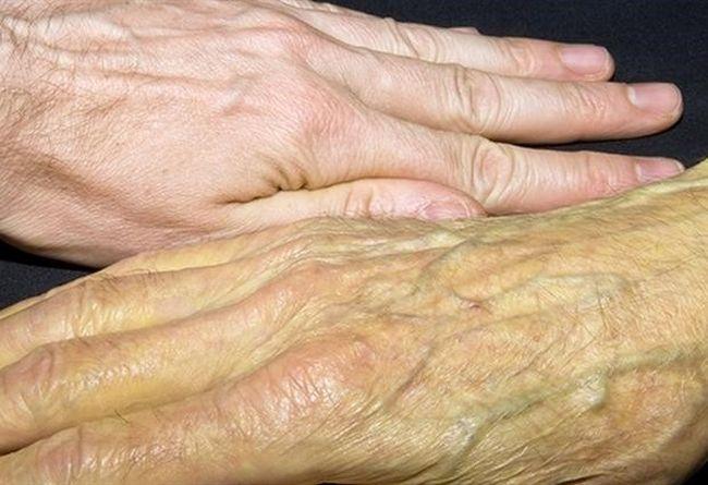 Желтуха - один из симптомов рака поджелудочной