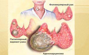 Как видим, первые два вида рака щитовидки бывают в разы чаще последнего и именно они в разы лучше поддаются лечению.