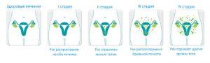 У рака яичников имеется 4 стадии, но уже во второй активно появляются метастазы, которые активно продвигаются к органам малого таза, кишечника и маточных трубок.