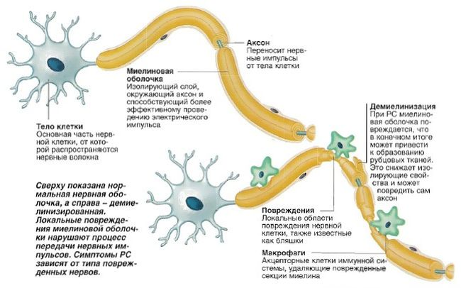 Центр рассеянного склероза находится в мозге