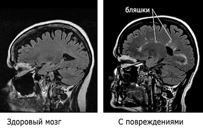 Первые признаки рассеянного склероза становятся заметны лишь тогда, когда иммунная система повредила коло 40 процентов нейронов