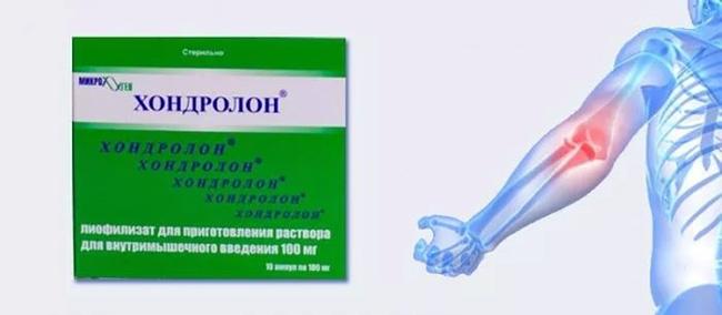 Хондролон - средство-аналог Хондрогарду, оно выводится из организма быстрее, чем Хондрогард
