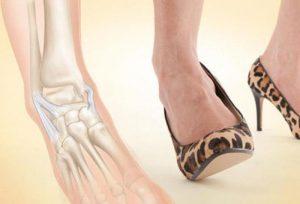 Растяжение связок голеностопа может случится как и во время постоянной ходьбы на высоком каблуке, так и из-за обильных тренировок и сильных перегрузок.