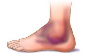 При растяжении практически всегда возникает опухоль и возникает боль при ходьбе, так что пропустить симптомы будет просто невозможно.