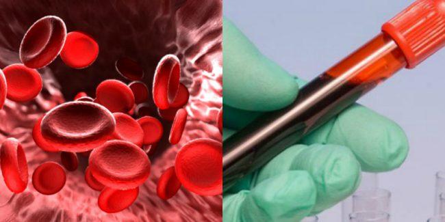 После сдачи общего анализа крови и определения степени тяжести гипервискозного синдрома (синдрома повышенной вязкости крови) врач обозначит необходимые меры по нормализации состояния
