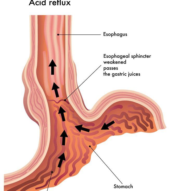 Рефлюкс-эзофагит может быть острым и хроническим
