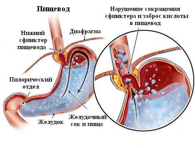 Заболевание рефлюз эзофагит может вызываться попаданием в организм инфекции