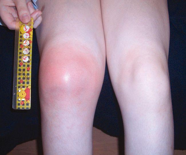 На фото показана ювенильная форма ревматоидного артрита