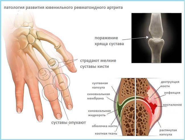 Патология развития ювенильного ревматоидного артрита у человека