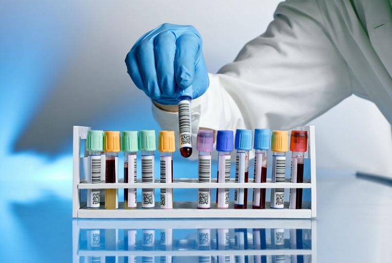 К информативным методам, которые используются для подтверждения диагноза, относят анализ на ротавирус (обнаружение в кале возбудителя методом электронной микроскопии), реакцию латекс-агглютинации и радиоиммунные тесты