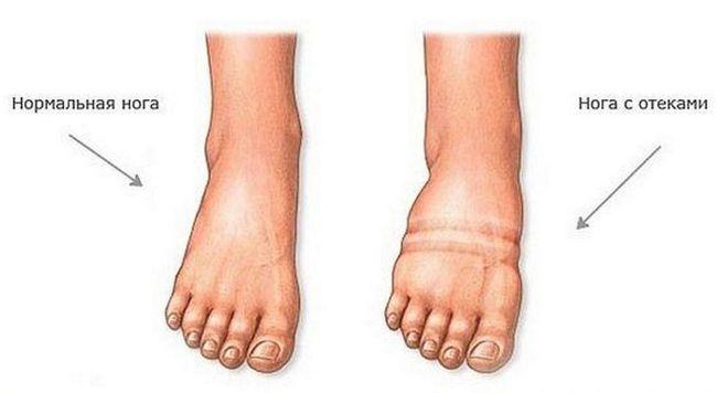 Отек ног при хронической сердечной недостаточности