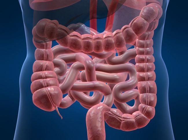 Синдром раздраженного кишечника – общее название для нарушения пищеварения, которое сопровождается болью, запорами