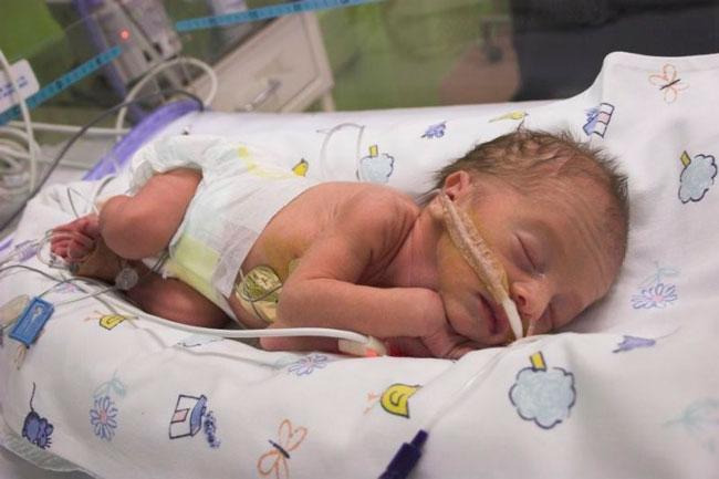Новорожденные наиболее восприимчивы к синегнойной инфекции, легко инфицируются госпитальным штаммом бактерии, кроме этого, синегнойная палочка может вызвать опасные заболевания, с которыми малышу будет очень сложно бороться