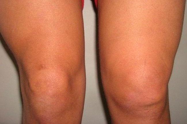 Синовит - одна из серьезных патологий нарушения работы коленного сустава, вызывающая дискомфорт и острую боль