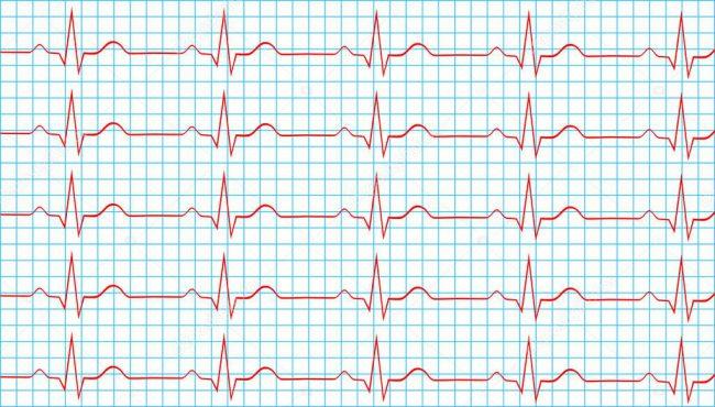 Синусовый ритм на электрокардиограмме означает, что этот импульс генерируется именно синусовым узлом