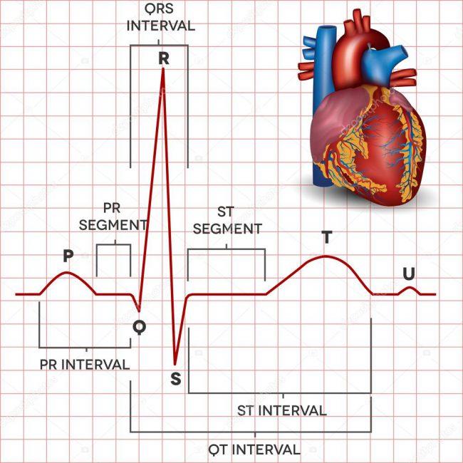 Синусовый ритм вместе с вертикальным положением электрической оси сердца (ЭОС) показывает, что эти параметры находятся в пределах нормы. Вертикальная ось показывает проекцию положения органа в грудной клетке