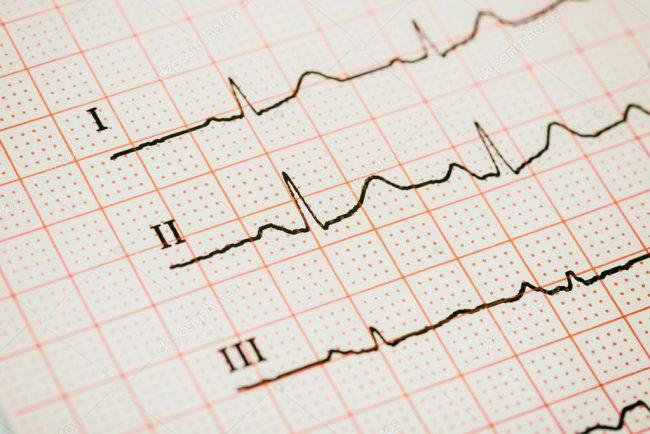 Подобно другим заболеваниям сердца синусовая аритмия может возникать из-за внутренних и внешних факторов. Четкое определение причины позволяет назначить эффективное лечение, а в дальнейшем организовать правильную профилактику заболевания