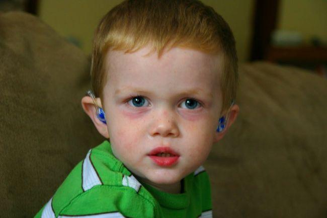 Синяки под глазами у ребенка могут говорить об одном из заболеваний